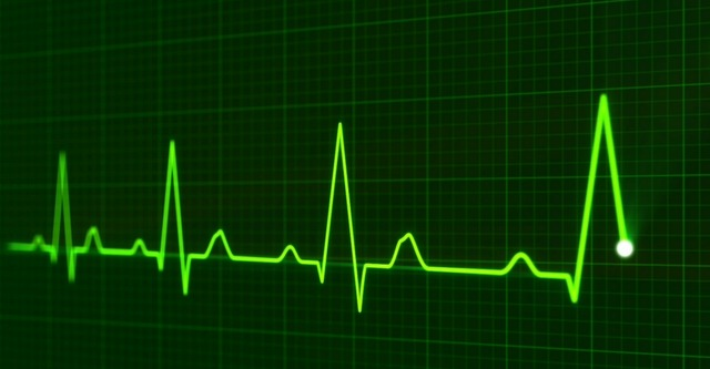 ICD 10 Impact on Cardiac Rhythm Management
